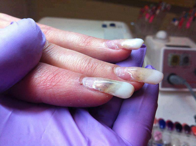 выбор жилья фото неудачного наращивания ногтей реализуем товары